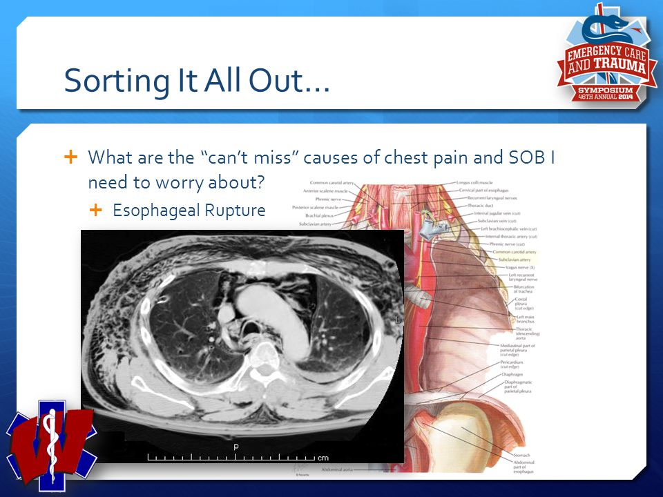 Sorting It All Out… What are the can't miss causes of chest pain and SOB I need to worry about Esophageal Rupture.