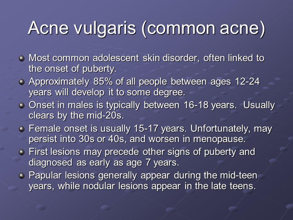 Acne vulgaris (common acne)
