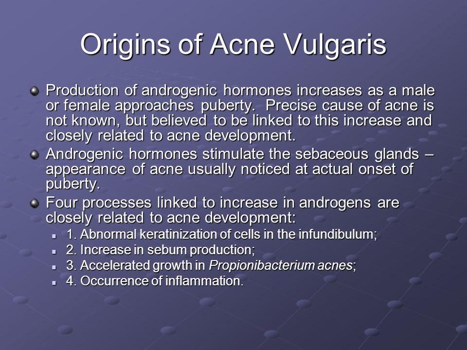 Origins of Acne Vulgaris