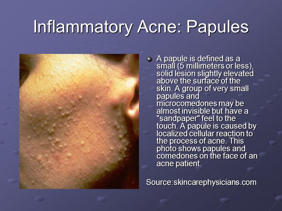 Inflammatory Acne: Papules