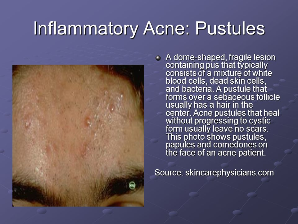 Inflammatory Acne: Pustules