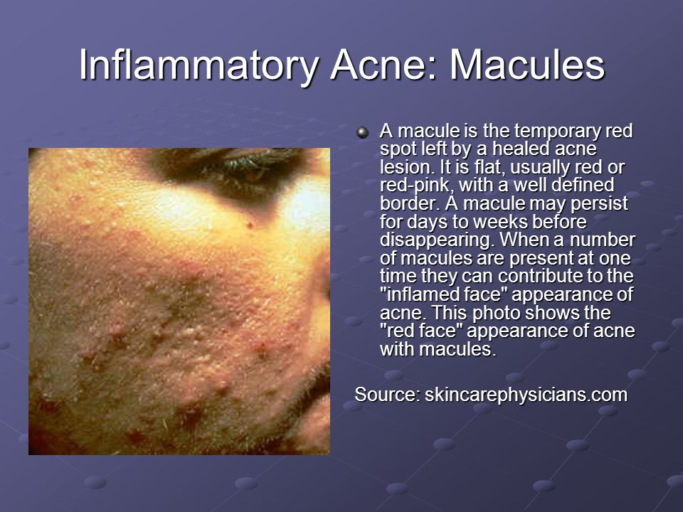 macule acne - photo #25