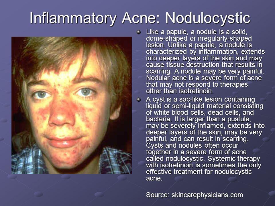 Inflammatory Acne: Nodulocystic