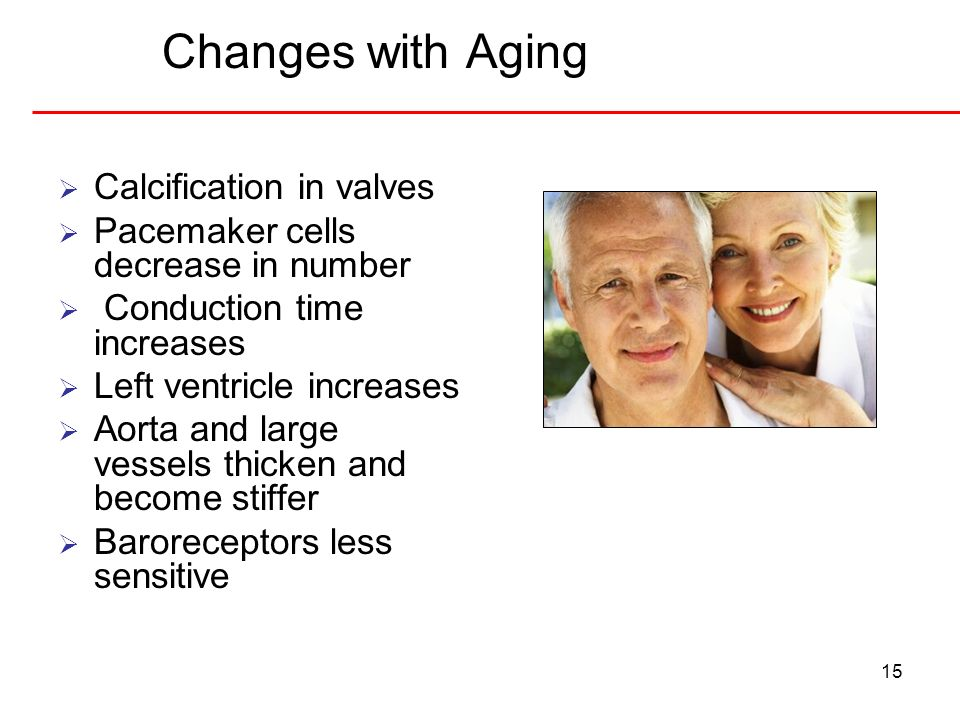 Changes with Aging Calcification in valves