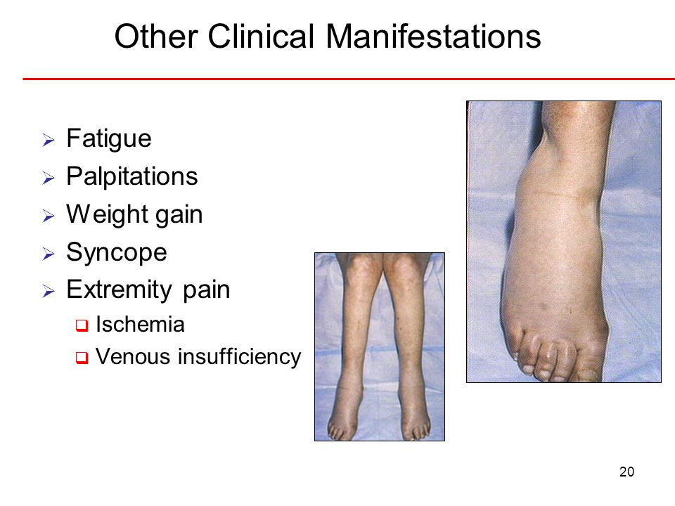 Other Clinical Manifestations
