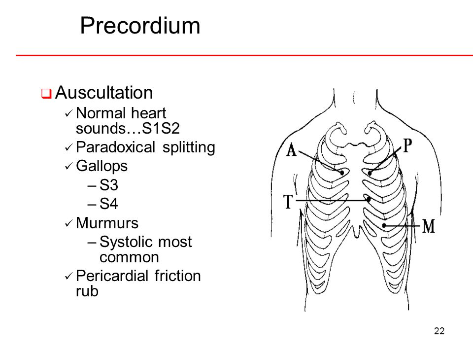 Precordium Auscultation Normal heart sounds…S1S2 Paradoxical splitting