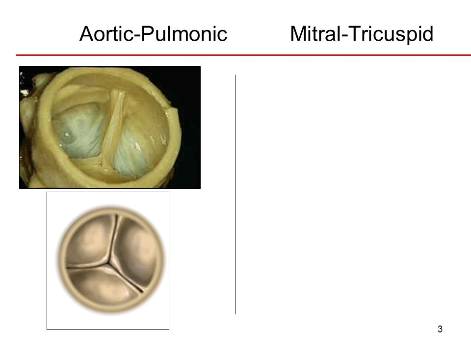 Aortic-Pulmonic Mitral-Tricuspid
