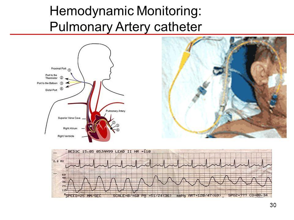 Hemodynamic Monitoring: Pulmonary Artery catheter
