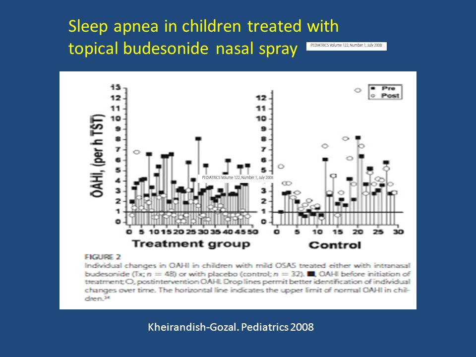 Sleep apnea in children treated with topical budesonide nasal spray