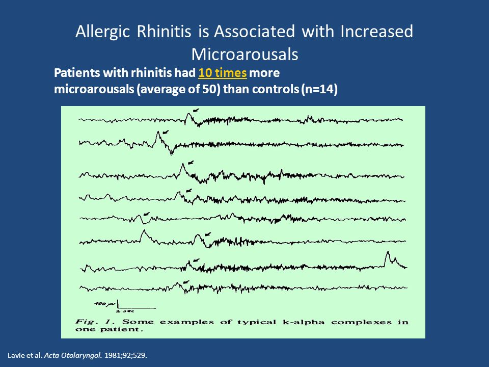 Allergic Rhinitis is Associated with Increased Microarousals