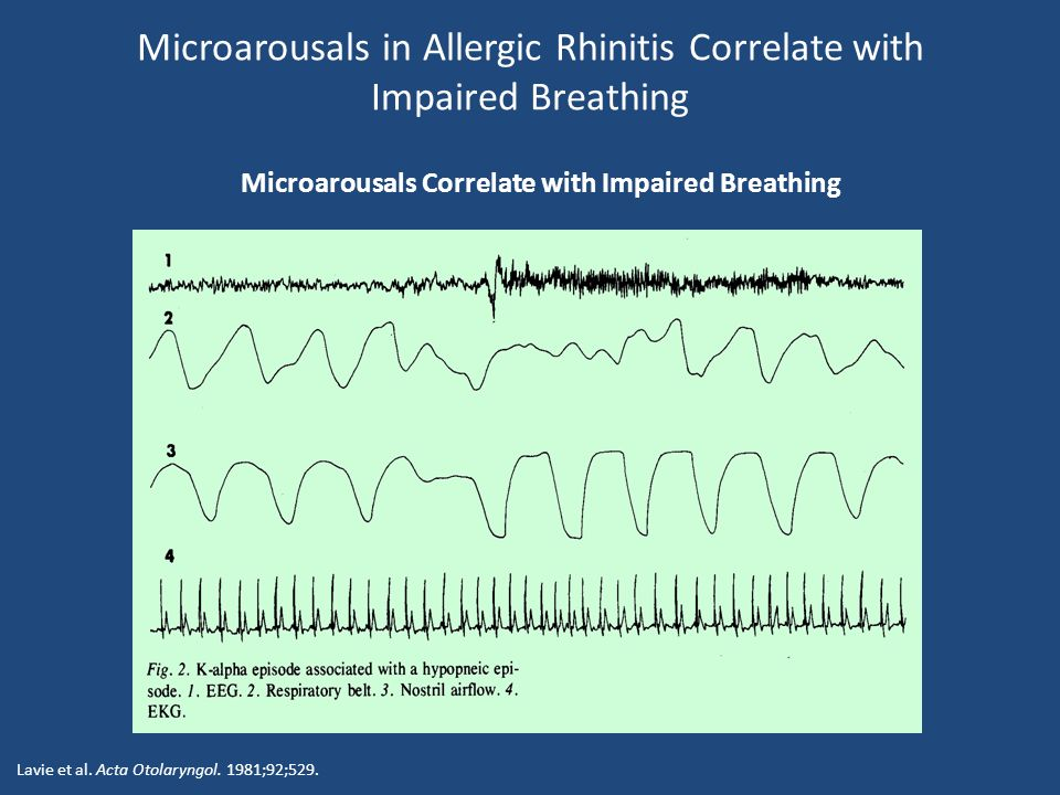 Microarousals in Allergic Rhinitis Correlate with Impaired Breathing