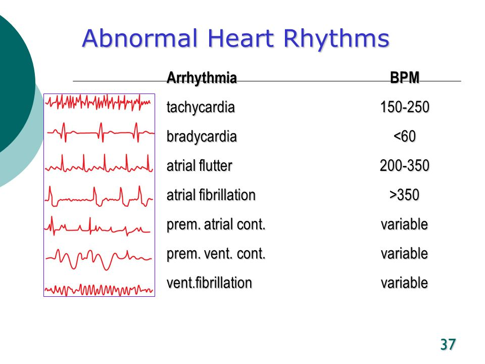 abnormalities in the cardiac cycle essay Below is a free excerpt of ecg paper from careful observation of the records for any abnormalities in the a cardiac cycle has a phase of activity called.