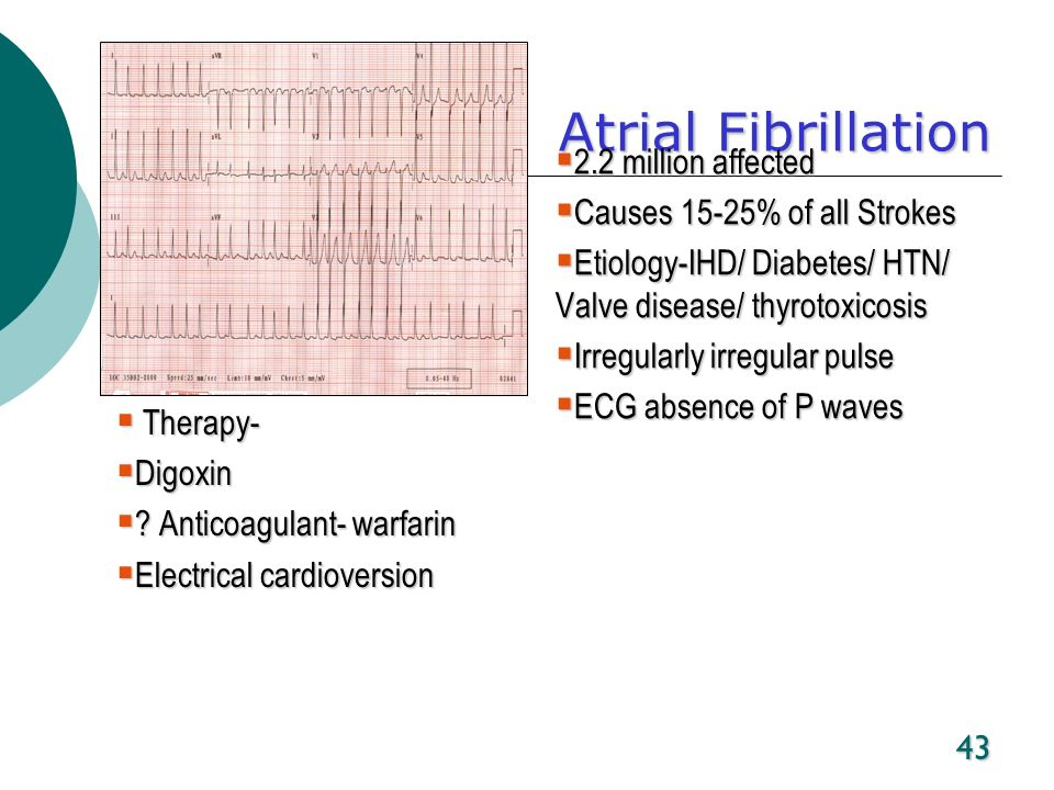 Atrial Fibrillation 2.2 million affected Causes 15-25% of all Strokes