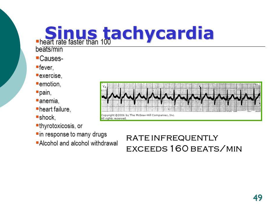 Sinus tachycardia rate infrequently exceeds 160 beats/min