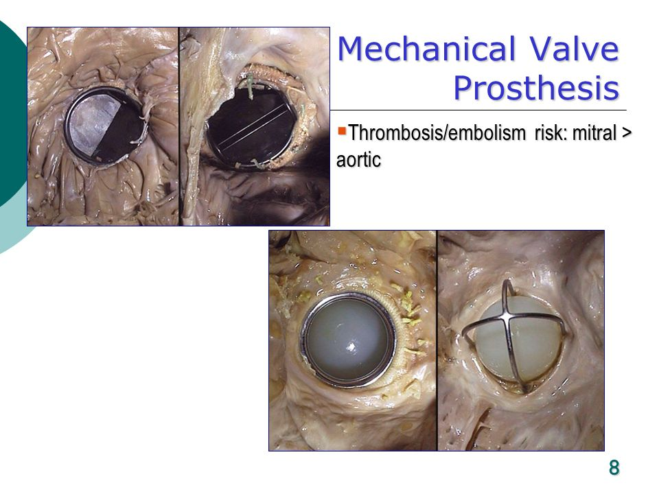 Mechanical Valve Prosthesis