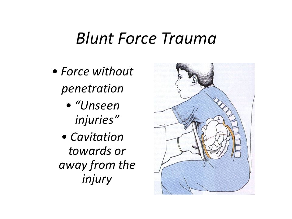 Cavitation towards or away from the injury
