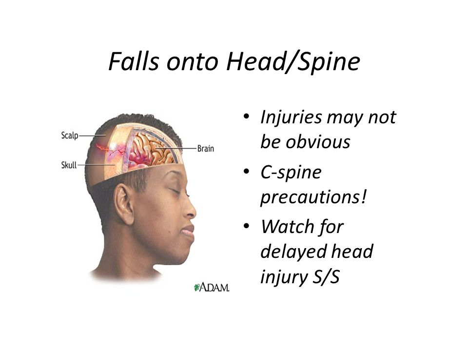 Falls onto Head/Spine Injuries may not be obvious C-spine precautions!