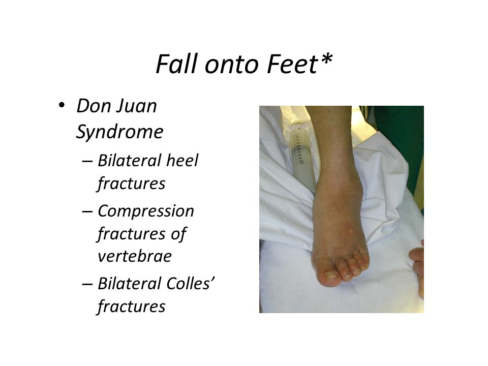 Fall onto Feet* Don Juan Syndrome Bilateral heel fractures