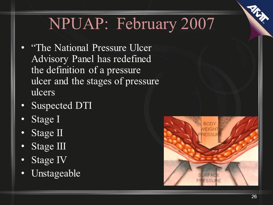 NPUAP: February 2007 The National Pressure Ulcer Advisory Panel has redefined the definition of a pressure ulcer and the stages of pressure ulcers.