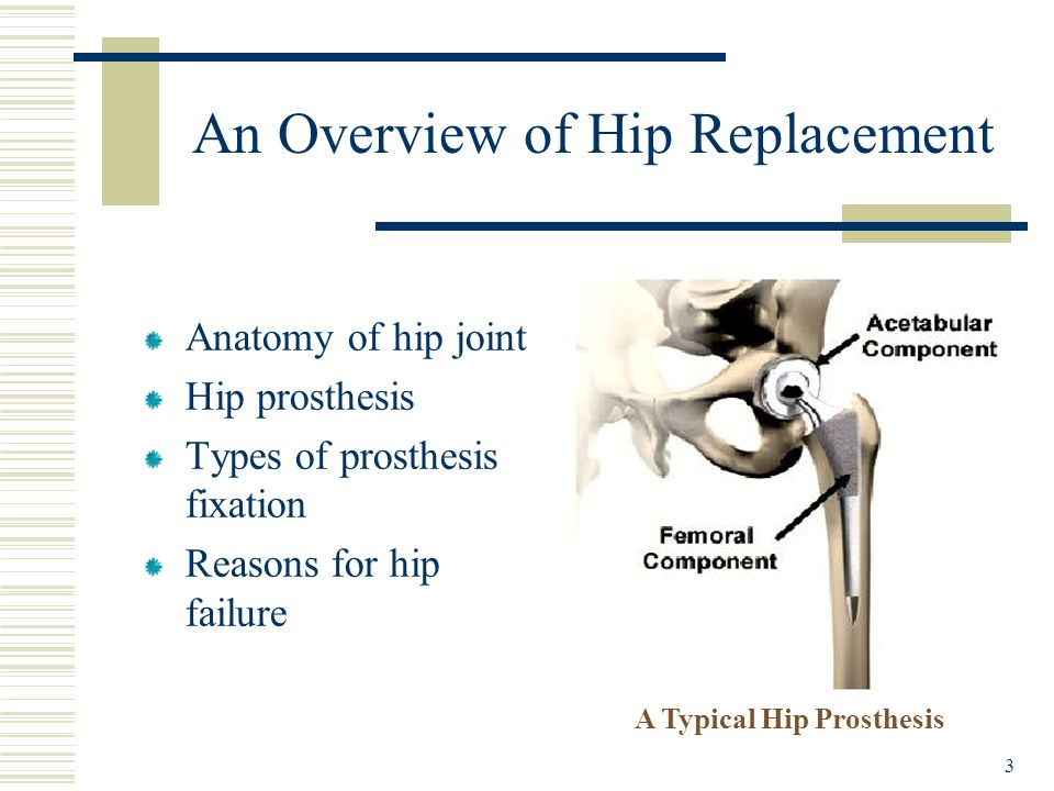 An Overview of Hip Replacement