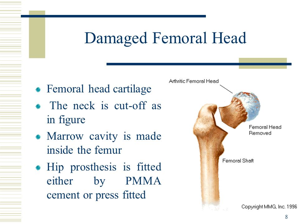 Damaged Femoral Head Femoral head cartilage