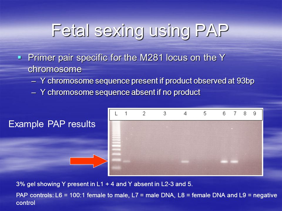 Fetal sexing using PAP Primer pair specific for the M281 locus on the Y chromosome. Y chromosome sequence present if product observed at 93bp.