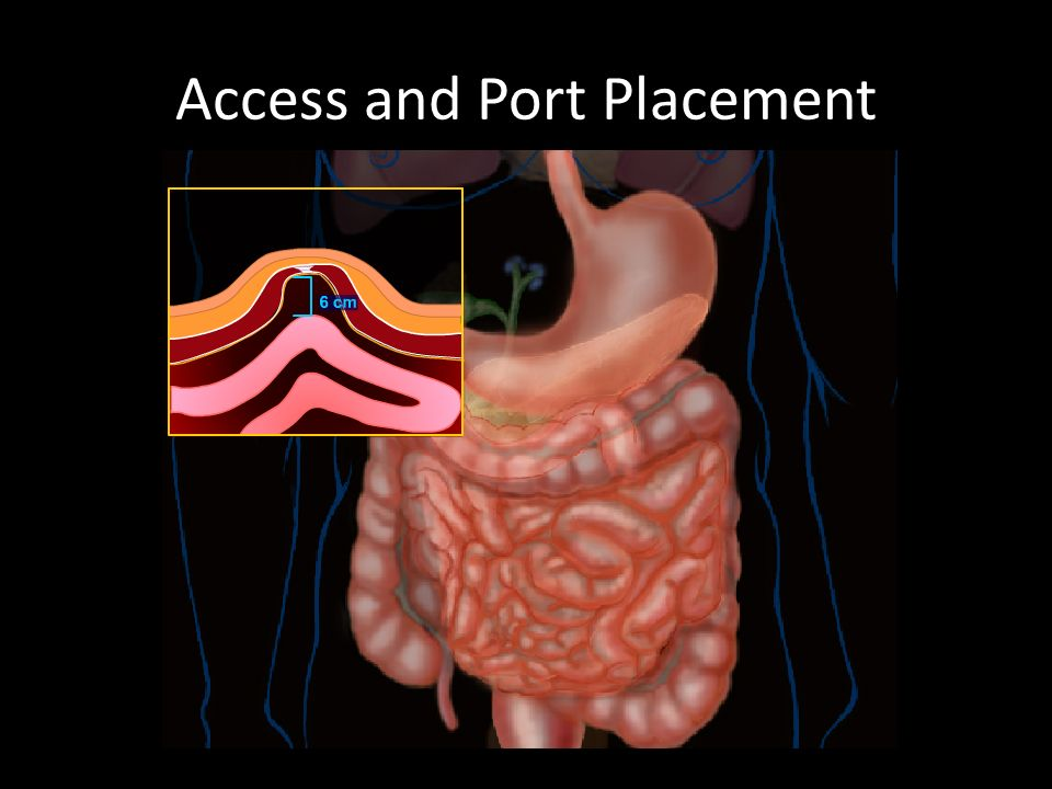 Access and Port Placement