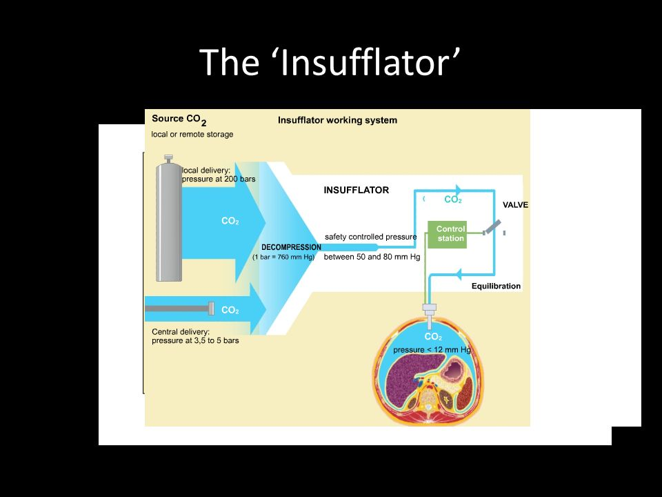 The 'Insufflator'