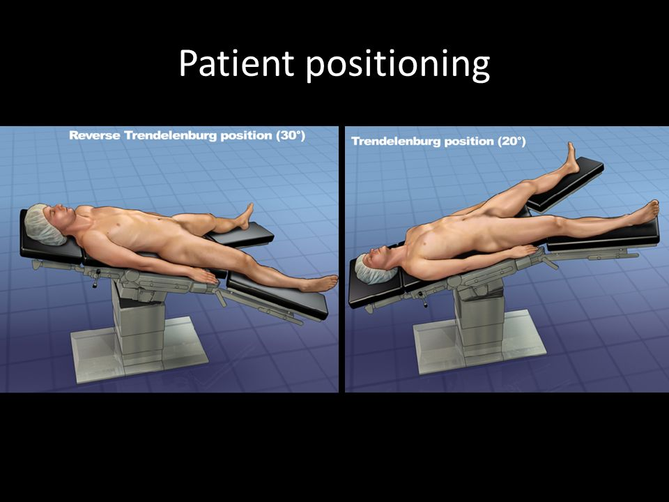 Patient positioning Trendelenburg position (head down) usually for gynaecological procedures or Reverse trendelenburg (head up) for upper GI surgery.