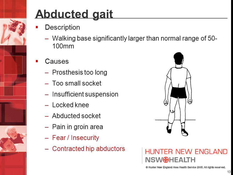 Abducted gait Description Causes