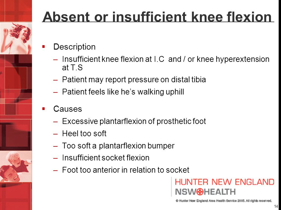 Absent or insufficient knee flexion