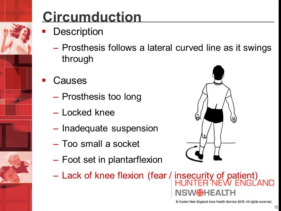 Circumduction Description Causes