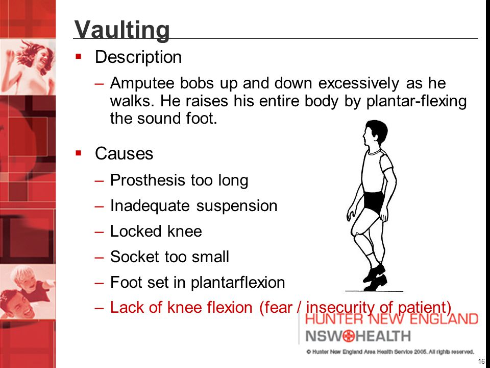 Vaulting Description Causes