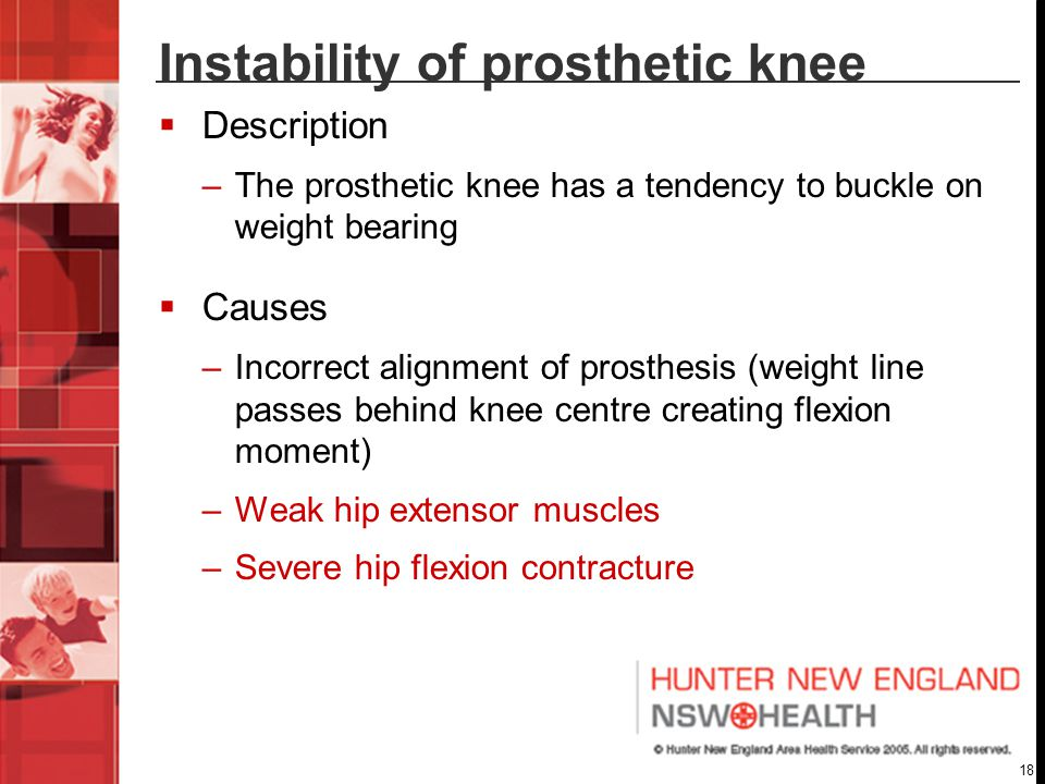 Instability of prosthetic knee