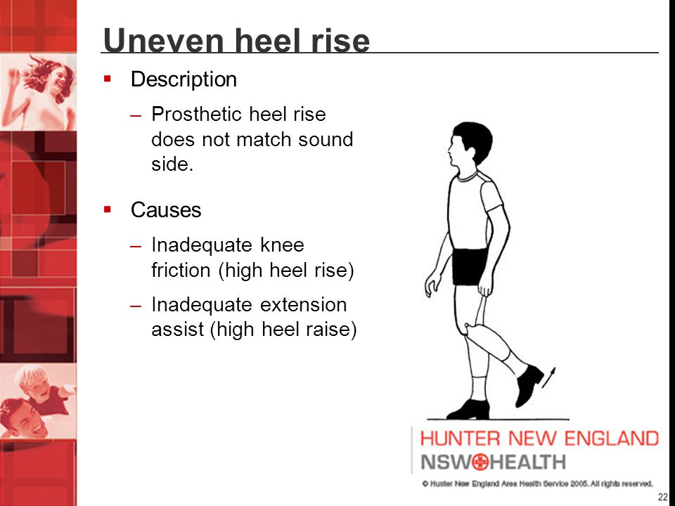Uneven heel rise Description Causes