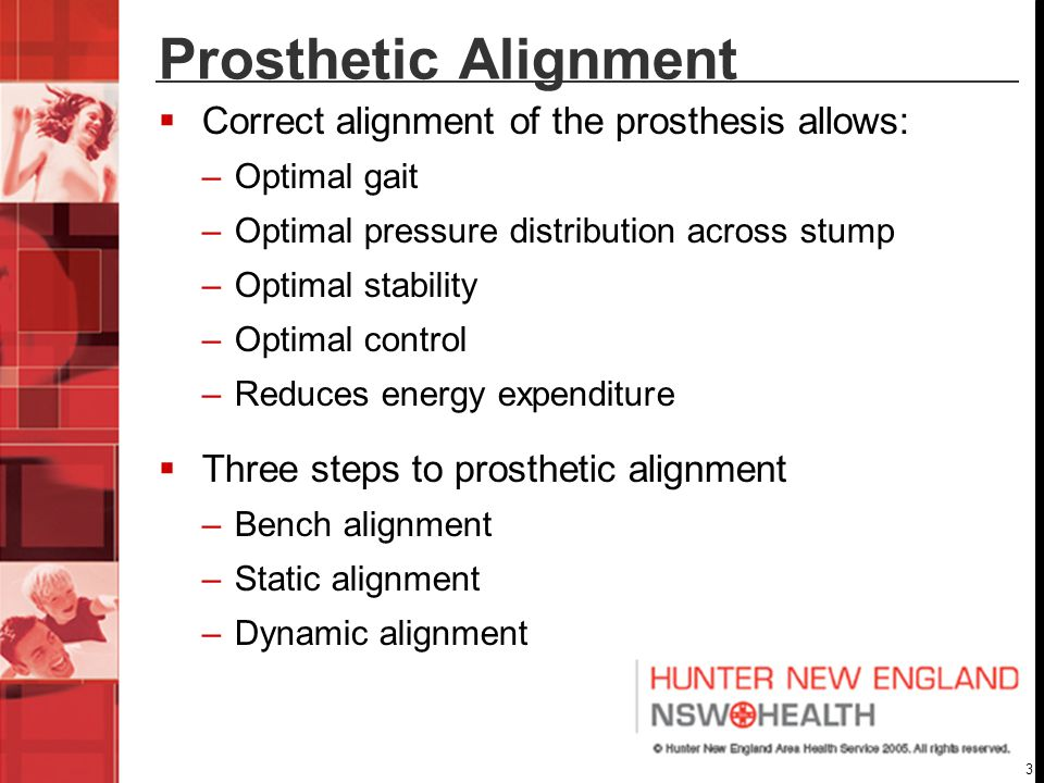 Prosthetic Alignment Correct alignment of the prosthesis allows: