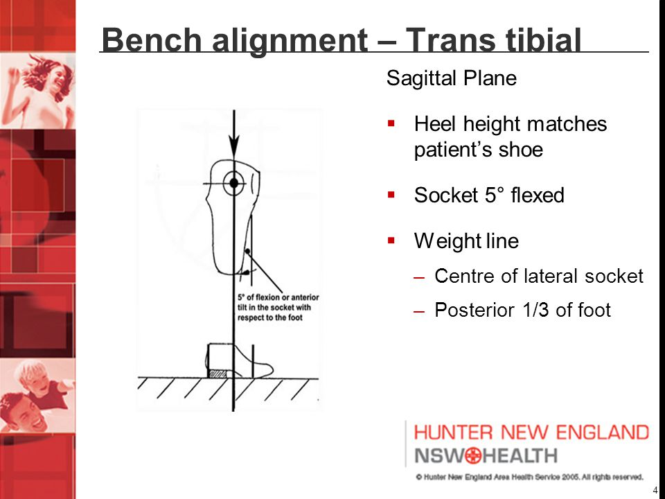 Bench alignment – Trans tibial