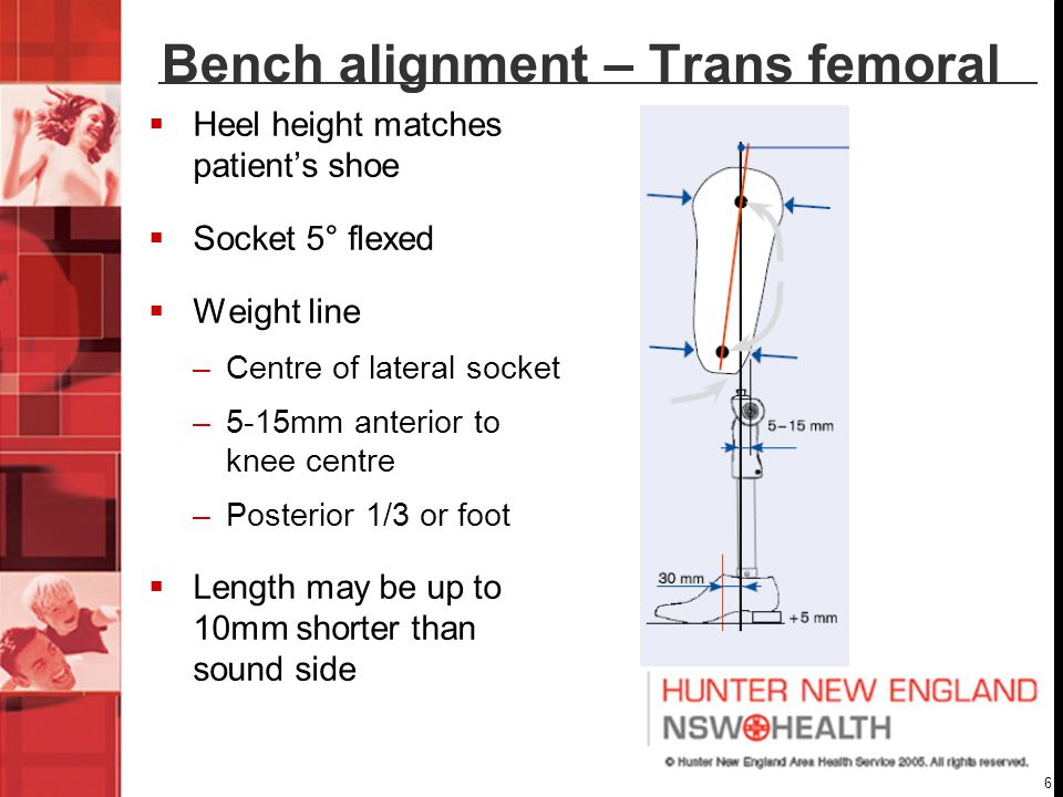 Bench alignment – Trans femoral