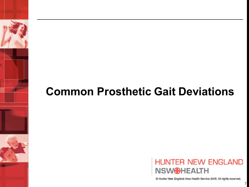 Common Prosthetic Gait Deviations
