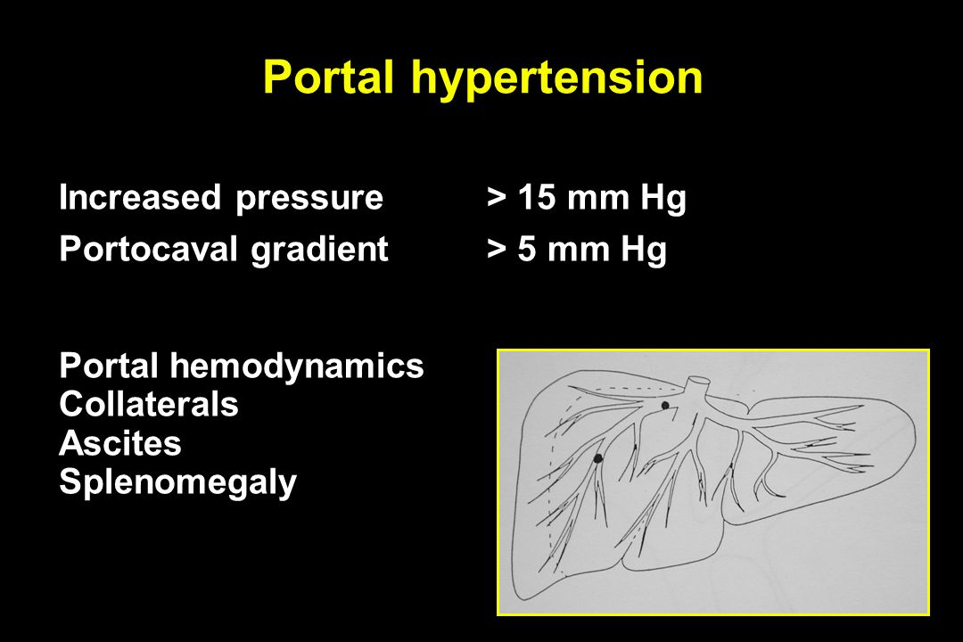 Portal hypertension Increased pressure > 15 mm Hg