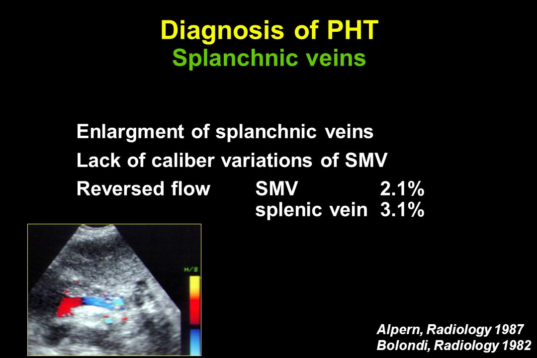 Diagnosis of PHT Splanchnic veins