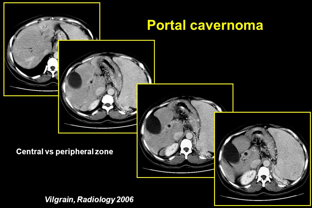 Portal cavernoma Central vs peripheral zone Vilgrain, Radiology 2006