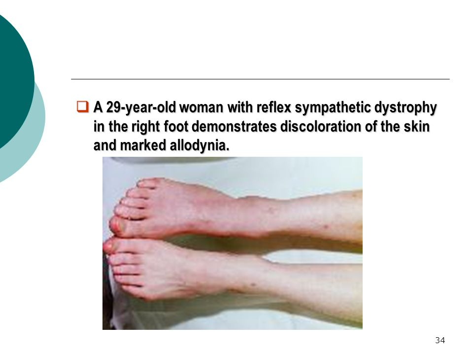 A 29-year-old woman with reflex sympathetic dystrophy in the right foot demonstrates discoloration of the skin and marked allodynia.