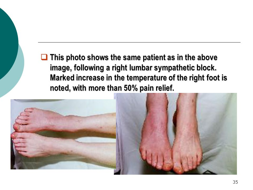 This photo shows the same patient as in the above image, following a right lumbar sympathetic block.