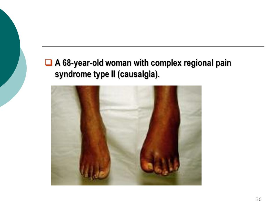A 68-year-old woman with complex regional pain syndrome type II (causalgia).