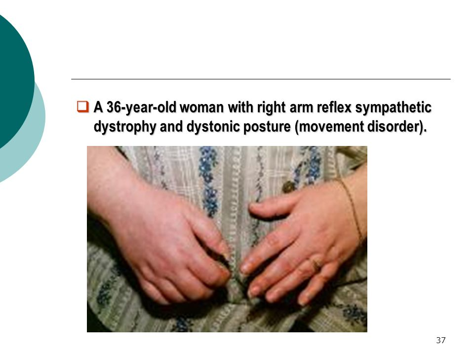 A 36-year-old woman with right arm reflex sympathetic dystrophy and dystonic posture (movement disorder).