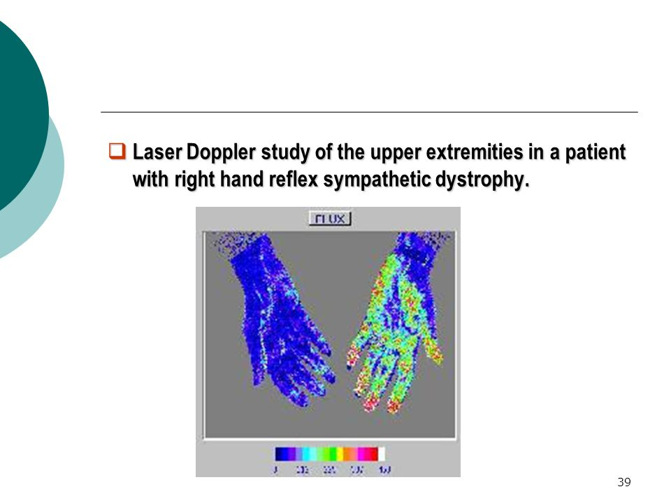 Laser Doppler study of the upper extremities in a patient with right hand reflex sympathetic dystrophy.