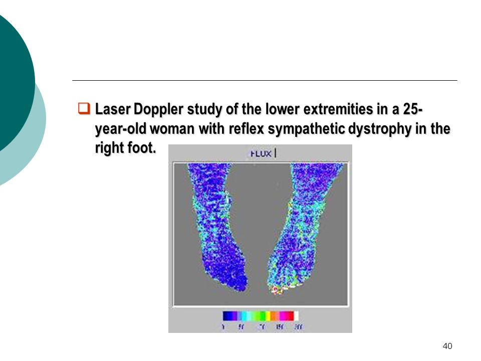 Laser Doppler study of the lower extremities in a 25-year-old woman with reflex sympathetic dystrophy in the right foot.