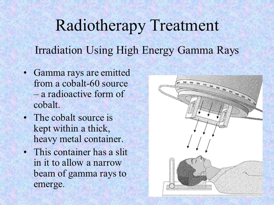 Radiotherapy Treatment Irradiation Using High Energy Gamma Rays