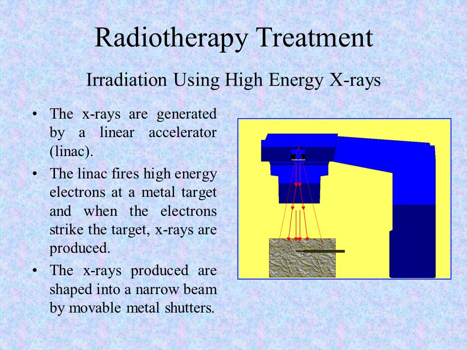 Radiotherapy Treatment Irradiation Using High Energy X-rays